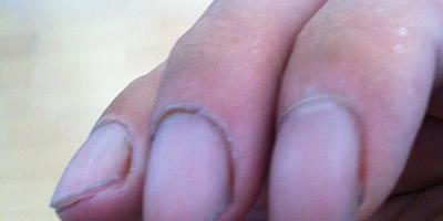 利尻ヘアカラートリートメント使用後の爪